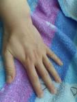Кожа рук до нанесения крема