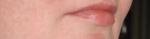 Детская зимняя гигиеническая помада «Морозко», губы после нанесения помады