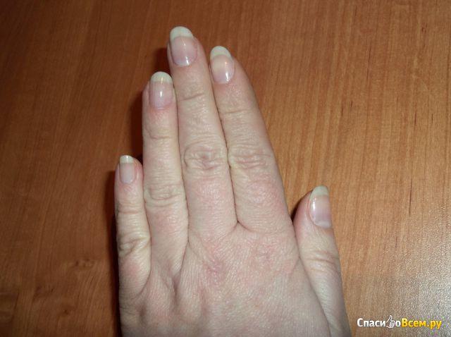 Отбеливание ногтей в домашних условиях быстро
