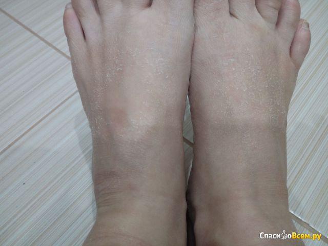 """Маска-носочки для ног отшелушивающая Bielita Витэкс """"Идеальные ножки"""" фото"""