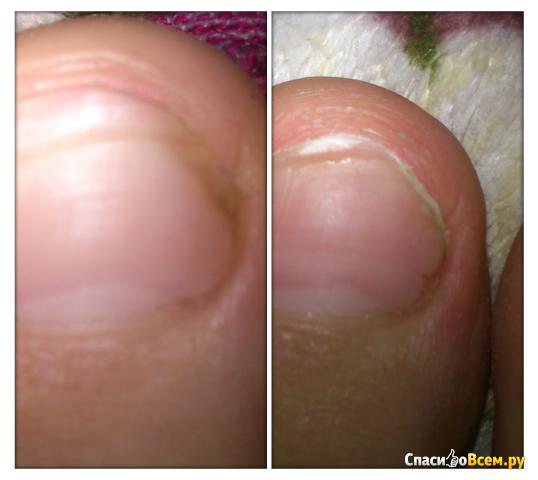 Болят ли ноги при грибке ногтей