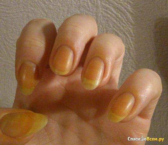 Укрепление ногтей йодом